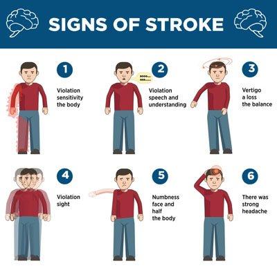 stroke-infographic
