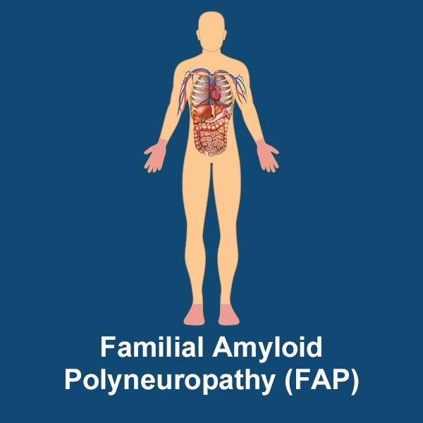 familial amyloid polyneuropathy image