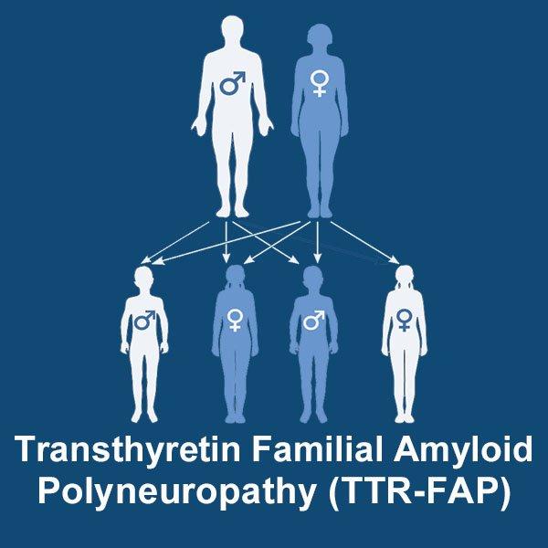 transthyretin familial amyloid polyneuropathy image