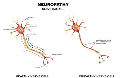 HAPPIN Study - Neuropathy