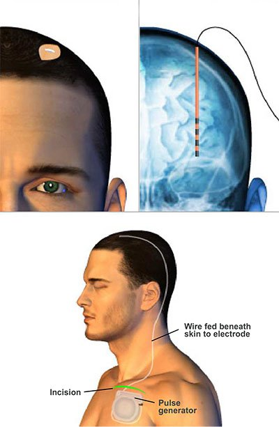 Deep Brain Stimulation image