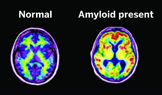 Alzheimer's Amyloid Build Up